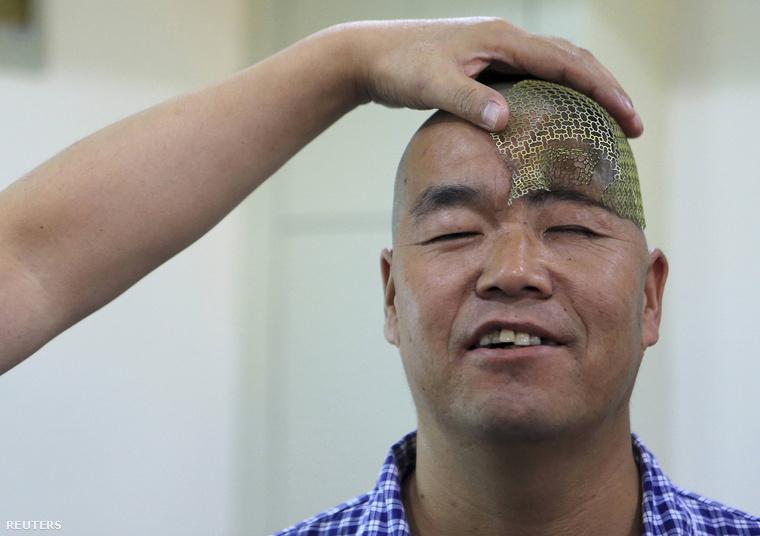 Az orvosok arra számítanak, hogy a titánháló felveszi a koponya eredeti alakját