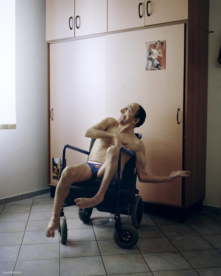 Andrea 51 éves, központi idegrendszeri bénulással született, most mégis a bolognai egyetemen tanul. Filozófiát és történelmet hallgat.