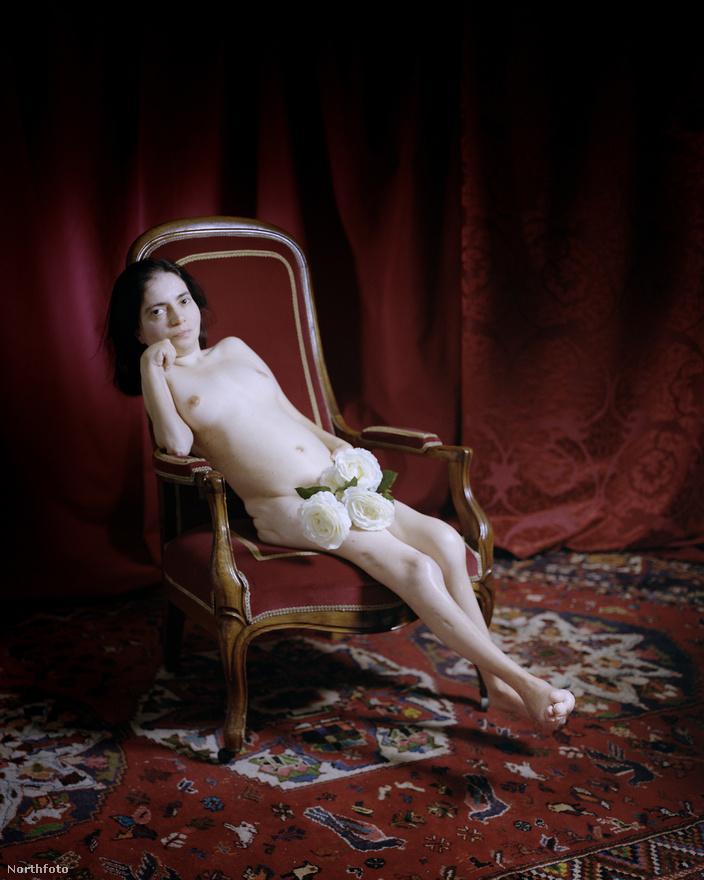 Susanna testét degeneratív ízületi betegség kínozza. A 27 éves nő testét 18 éves kora óta folyamatosan bénítja a kór.