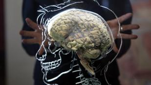 100 agy tűnt el a Texasi Egyetemről