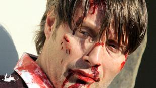 Mads Mikkelsen iszonyatosan betegfejű csóka a Hannibal forgatásán