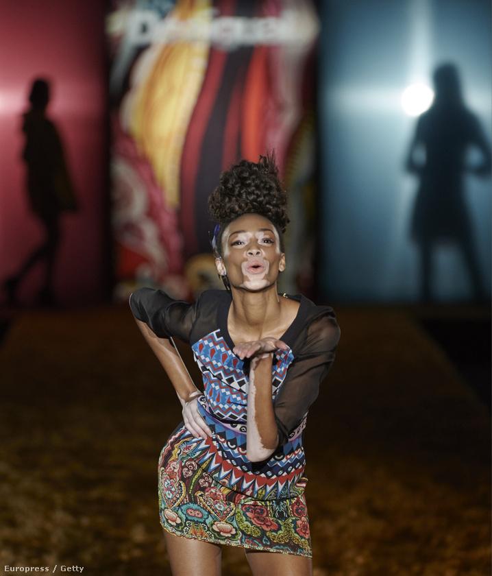 A Winnie Harlow művésznevet használó modell bőrhibája amúgy azért is érdekes