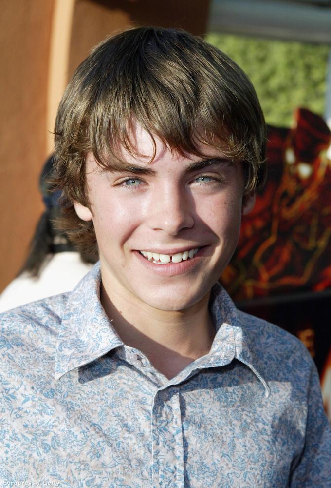 Zac Efron a High School Musical előtt kifejezetten szerencsétlenül nézett ki