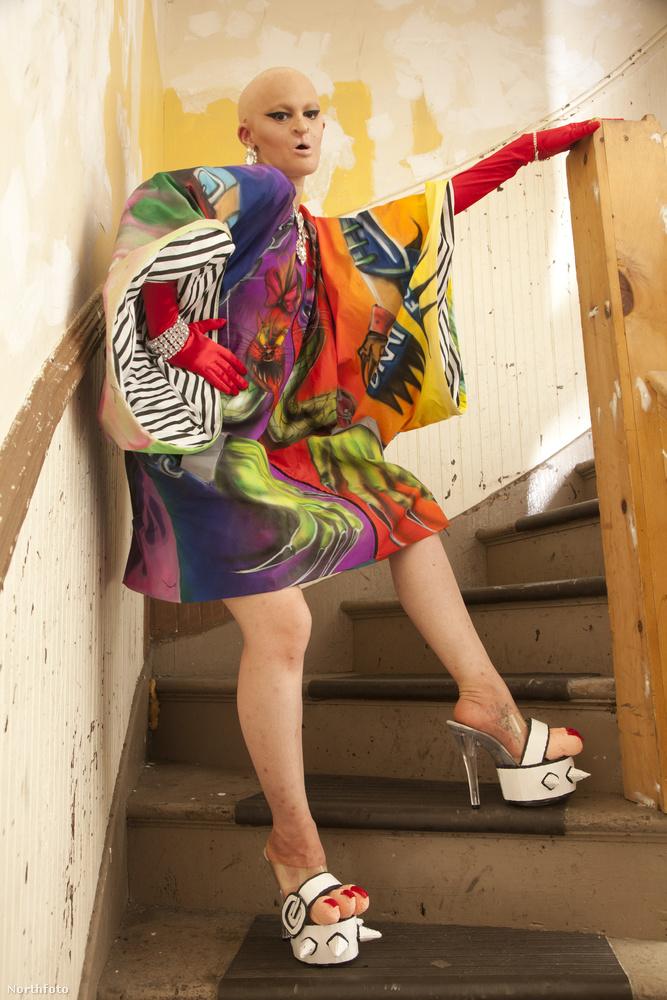 26 évesen jelenleg őt tartják a divatvilág egyik legegyénibb színfoltjának.