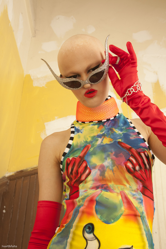 Ő itt Melanie Gaydos, egy angol modell, akinek végül minden akadály ellenére sikerült karriert építenie