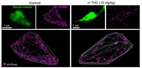 Az agy hippocampus nevű, többek közt az emléknyomok rögzítésében nélkülözhetetlen szerepet betöltő területén jelöltünk meg egyedi idegsejteket, ezek idegvégződései zöld színnel tűnnek fel az ábrán. A végződések felszínén STORM szuperrezolúciós mikroszkópiás eljárással vizsgáltuk a kannabinoidreceptor-fehérjék elhelyezkedését olyan egerekben, amelyek a kísérletet megelőző 6 napon kontroll-, illetve THC-tartalmú injekciókat kaptak. A THC a marihuána legfőbb pszichoaktív komponense, az injekciókban alkalmazott koncentráció elegendő volt a vér emberi marihuánafogyasztásnak megfelelő THC-szintjének eléréséhez. Ismert, hogy ez a dózis hozzászokást és a kognitív képességek csökkenését váltja ki mind kísérleti állatokban, mind emberekben. A 3 dimenzionális ábrázolásban megfigyelhető, hogy míg a kontrollmintákban az 1-es típusú kannabinoid receptorok (lila pontok) nagy mennyiségben borítják az idegvégződés felszínét, a THC-injekciók után a receptorok mennyisége drámai módon lecsökkent, és a megmaradó receptormolekulák is az idegvégződés felszínéről a sejten belüli térbe vándoroltak. Ebből arra következtethetünk, hogy a kezelés hatására nem marad elegendő receptor az agy saját, belső kannabinoid jelátvivő rendszerének normális működéséhez, és ez a jelenség állhat a csökkent kognitív képességek hátterében.