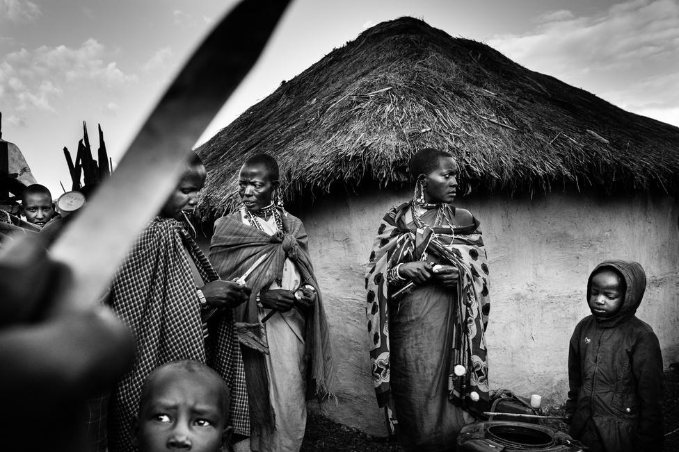 Jelenleg körülbelül 130 millió olyan nő él a világon, főként Afrikában és a Közel-Keleten, akinek valamilyen mértékben megcsonkították a nemiszervét.  A körülmetélést a legtöbb helyen bábák, vagy más, tradicionálisan fontos szerepeket betöltő nők végzik, de az ENSZ szerint az utóbbi években egyre több  országban hivatalos egészségügyi szakemberek is végeznek nemiszerv csonkítást, ami egy aggasztó trend, bár a fertőzések kockázatát csökkenti.