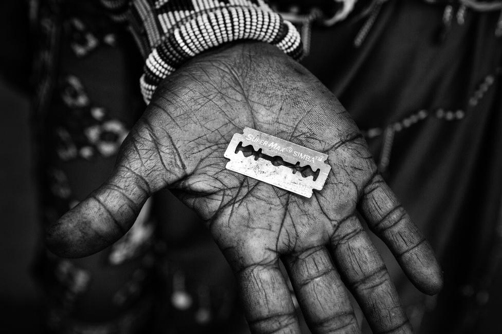 A körülmetélésnek semmilyen pozitív egészségügyi hatása nincs, viszont sok szempontból nagyon veszélyes a lányok egészségére. Hagyományos körülmények között, érzéstelenítés és fertőtlenítés nélkül végezve sokkot, vérfertőzést és bakteriális fertőzést okozhat, és az is előfordul, hogy a vérveszteségbe belehalnak a lányok. Később, a már begyógyult seb is rendszeres húgyúti fertőzésekhez vezet,  de gyakori következmény a meddőség is, illetve a szüléskor is sokszor okoz komplikációt a megcsonkított vagy bevarrt nemiszerv. A képen az penge látható, amellyel Nasirian nemiszervét megcsonkították. Egy pengét gyakran több lány körülmetéléséhez is felhasználnak, így ha ez egyikőjüknek valamilyen fertőző betegsége van, a többiek is elkapják.