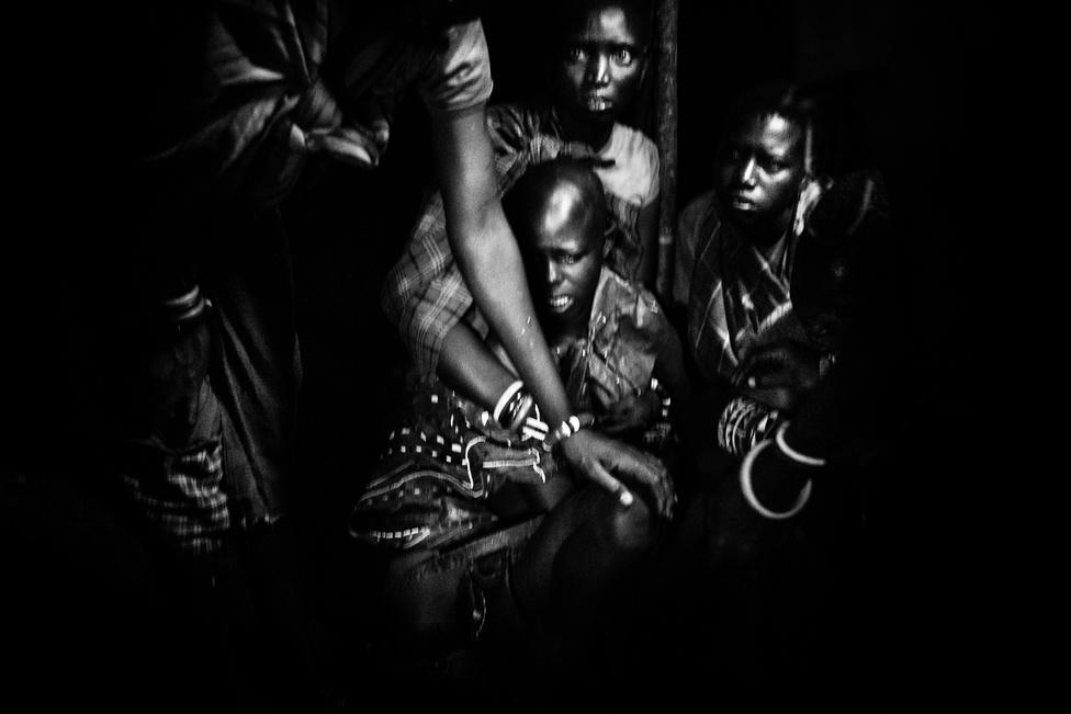 A véres és kegyetlen szertartással a házasságra készítik fel a fiatal lányokat, a hagyományok szerint ugyanis a női nemiszerv tisztátatalan, férfias részeit vágják le. Ez egyes közösségekben a csiklót vagy annak egy részét, máshol a csiklót és kisajkat jelenti, de olyan helyek is vannak, ahol vagy teljesen levágják a külső nemi szerveket, vagy bevarrják a nők hüvelyét. A képen Nasirian sír a szertartás kezdetén.