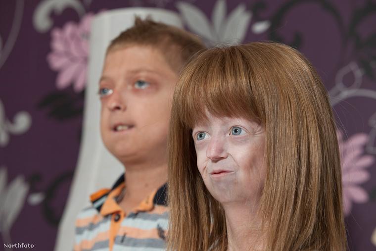 tk3s bm progeria 00882899