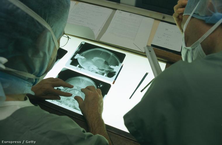Elektromos stimuláló terápia pontjait számolják ki egy Parkinson-kóros beteg röntgenfelvételein