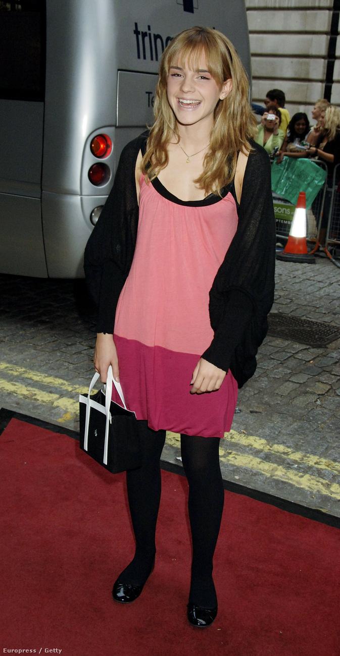 És igen, a fokozhatatlanul csodálatos Emma Watsonnak is voltak rossz pillanatai