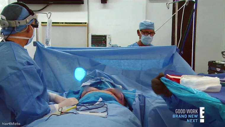 Ha nem bírja a műtéteket, akkor most ne lapozzon tovább, bár semmi durvát vagy véreset nem fog látni