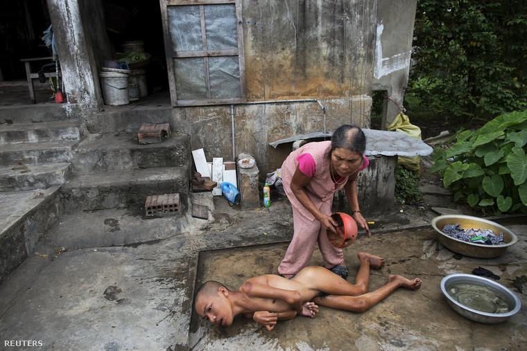 Bár a háború véget ért, az Agent Orange azóta is szedi áldozatait. Thang Thi Thang gyermeke a háborút követően született súlyos betegségekkel.