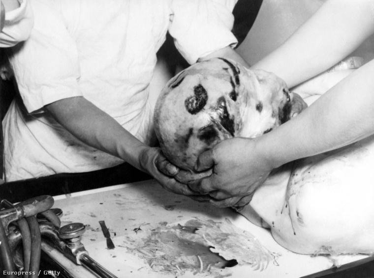 Ez a kép Trockij boncolásán készült