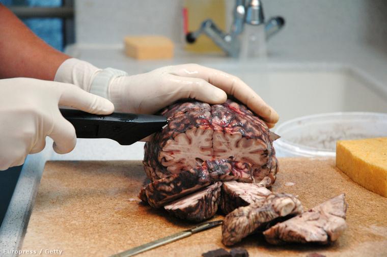 Így néz ki, amikor egy emberi agyat szeletelnek boncoláson