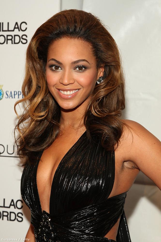 Beyoncé annyira sok szőrt nem növesztett, de azért látaszik, hogy nem egészen sima az a hónalj