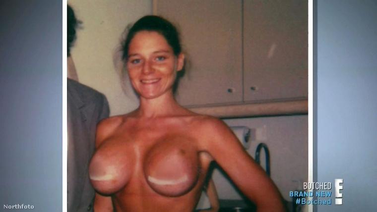 Dee Stein egyébként így nézett ki az egyik első mellműtétje után