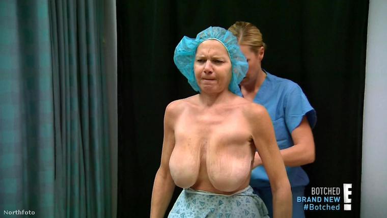 Ez pedig már egy későbbi műtét alkalmával készített fotó, aminek a végeredménye...