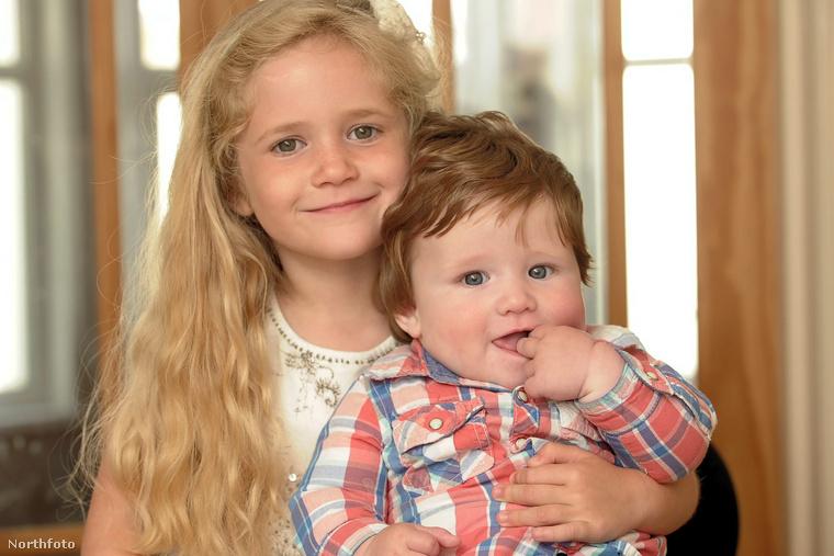 A Daily Mail szerint a családban amúgy mindenkinek elkepesztően sok haja van, és Fergus nővére, anyukája, illetve nagypapája is baromi sok hajjal született.