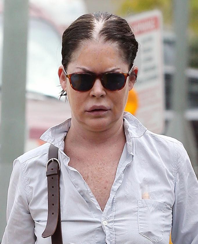 Szóval ő itt Lara Flynn Boyle idén, vásárlás közben fényképezték le azok a zsenik, akik egyáltalán felismerték a durván felpuffadt, rettentő hajjal rendelkező színésznőt.