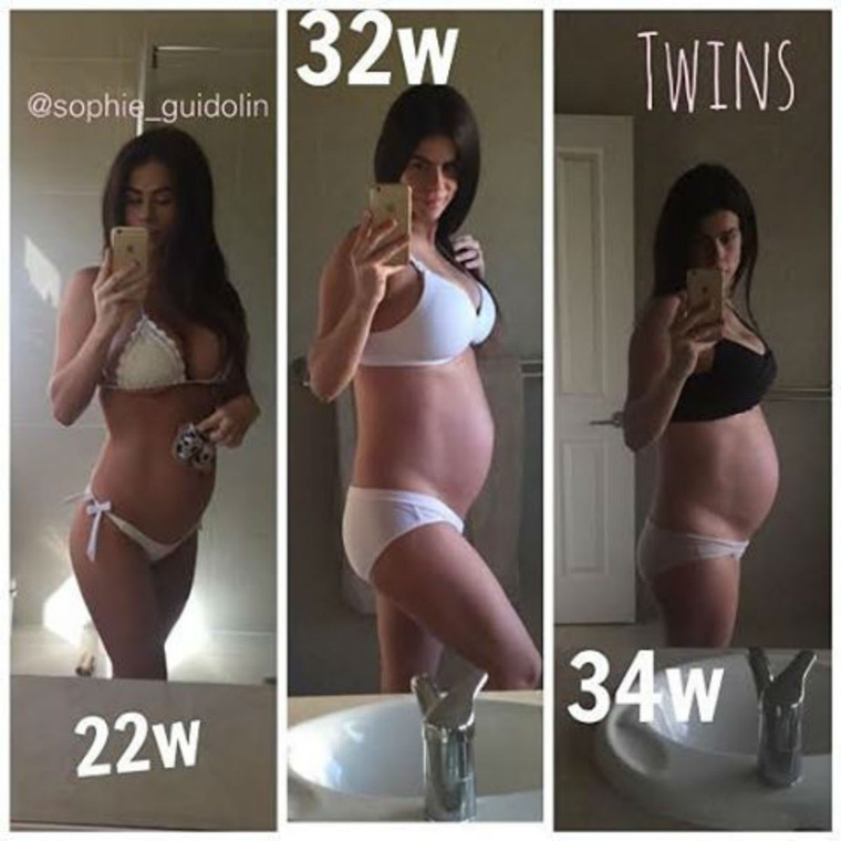 34 hetes terhes volt, mikor már el lehetett hinni, hogy tényleg gyereket vár