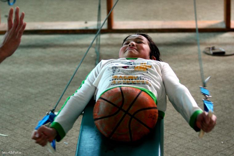 A hírnév hatására a Kínai Rehabilitációs Kutatóközpont úgy döntött, segít a kislányon.